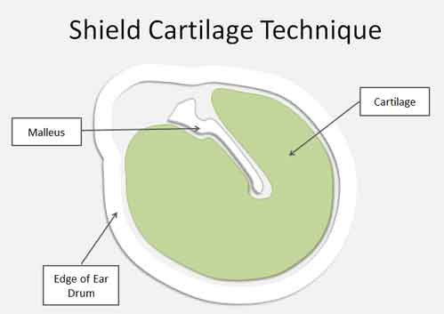 tympanic perforation shield cartilage tympanoplasty repair